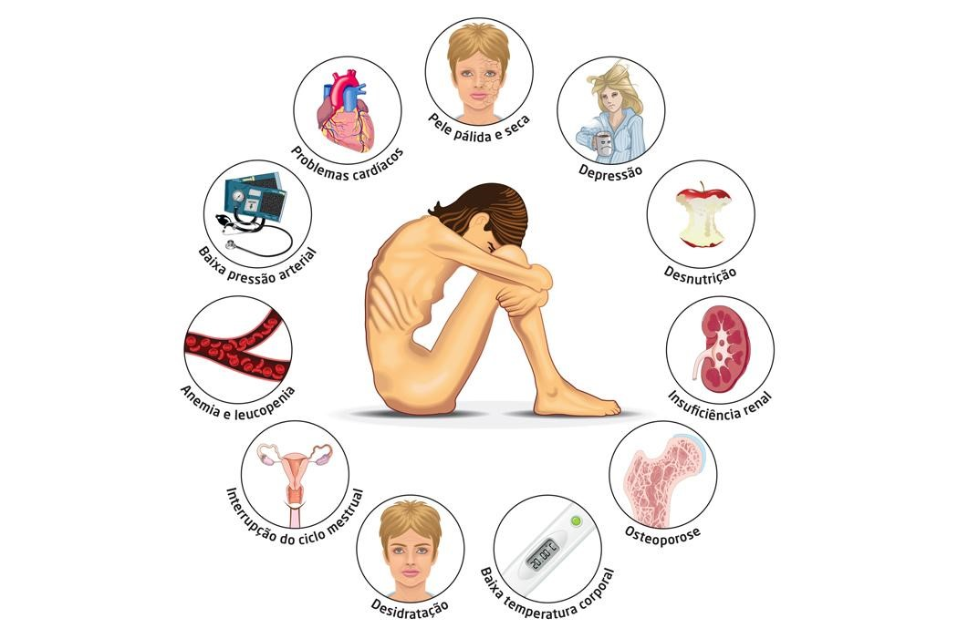 image showing the effects and symptoms of anorexia taken from a a portuguese source