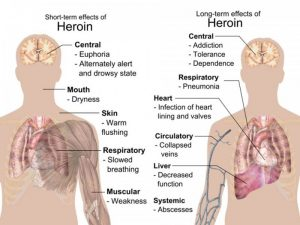 effects of heroin image