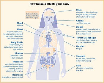 image showing how bulimia affects our bodies