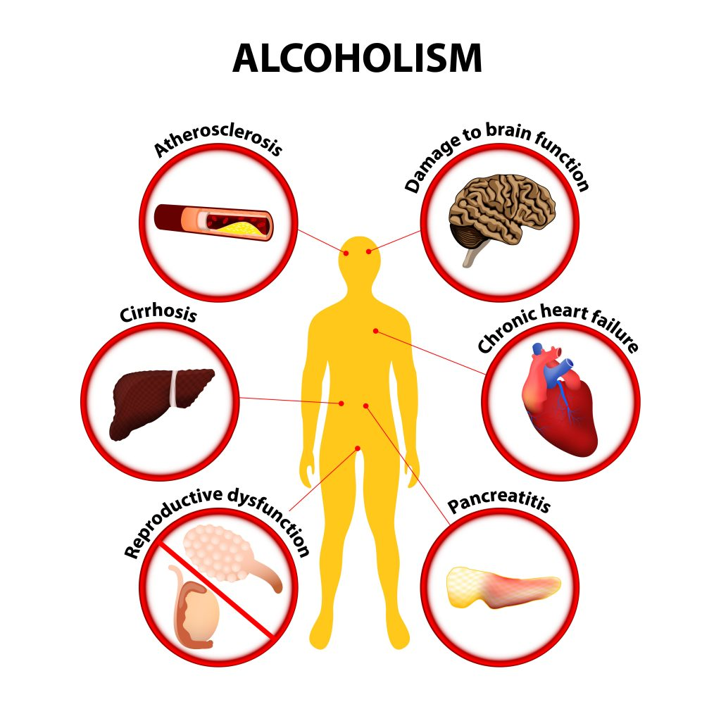 Alcoholism. Some of the possible long-term effects of alcohol an individual may develop: atherosclerosis, cirrhosis, pancreatitis, damage to brain function, chronic heart failure, reproductive dysfunction.