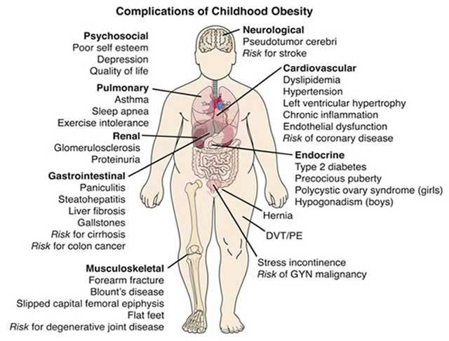 childhood obesity chart