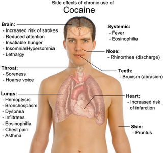 Image showing the cocaine effects on the body