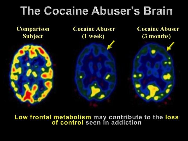 Image showing the cocaine effects on the brain