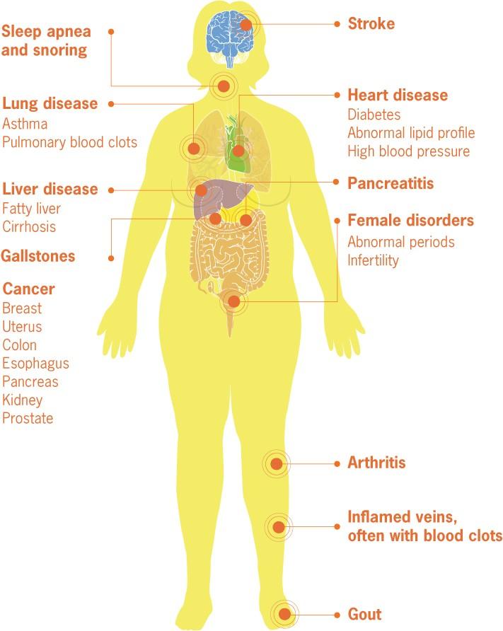female obesity chart