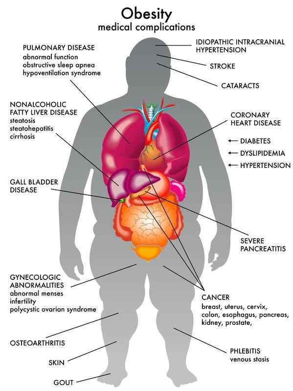 male obesity chart
