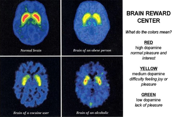 image showing the brain reward centres