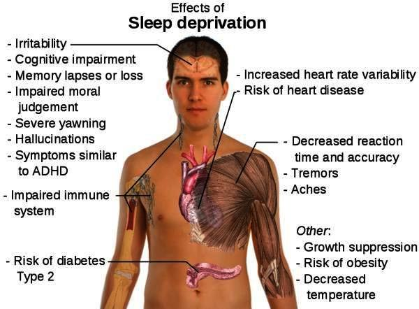 effects of sleep deprivation image
