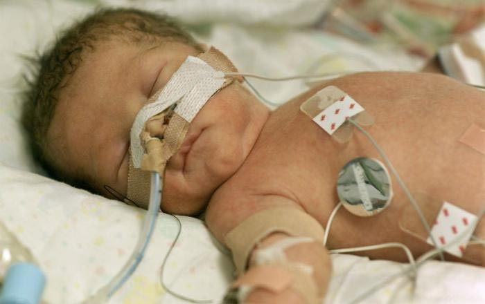 image of a a baby being treated in the hospital