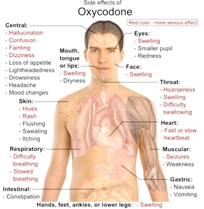 side-effects of oxycodone
