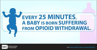 babies with opioid withdrawal